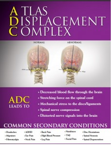 Migraine headache is just one secondary condition of Atlas Displacement Complex