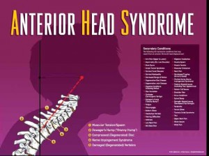 Anterior Head Syndrome is an extremely common cause of Doweger's Hump