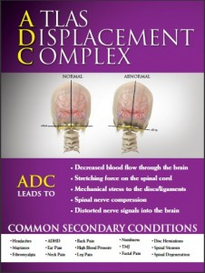 Migraine Headaches are just one of the Secondary Conditions related to Atlas Displacement Complex