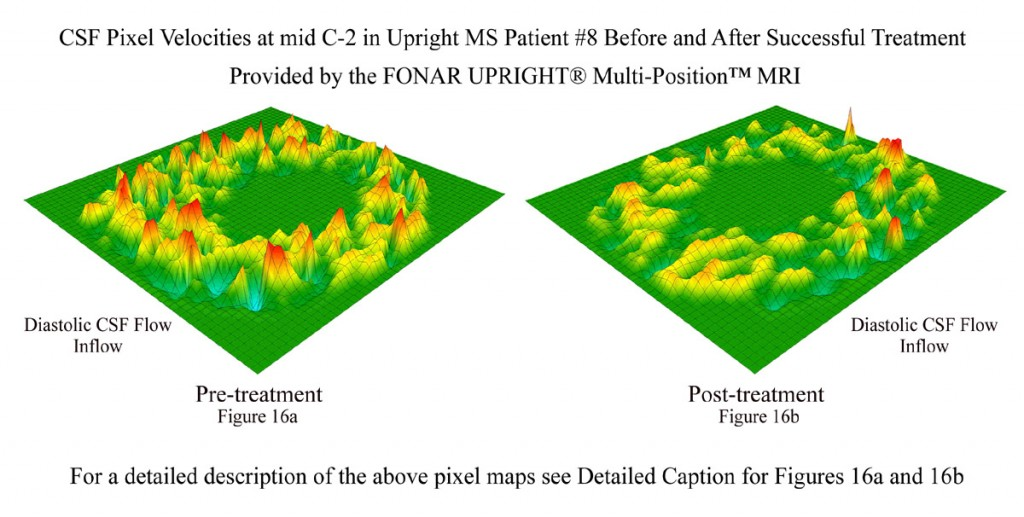 Measurements of CSF flow before and after atlas correction