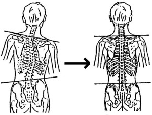Many cases of abnormal weight distribution are a result of abnormal spinal positioning.