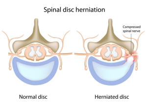 When a disc breaks down and leaks a hard fluid on top of the nerve, the nerve can become pinched between a rock (bone) and a hard place (disc) Image Credit: Can Stock Photos