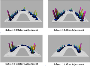 Force profiles of the teeth and jaw before and after Atlas Correction