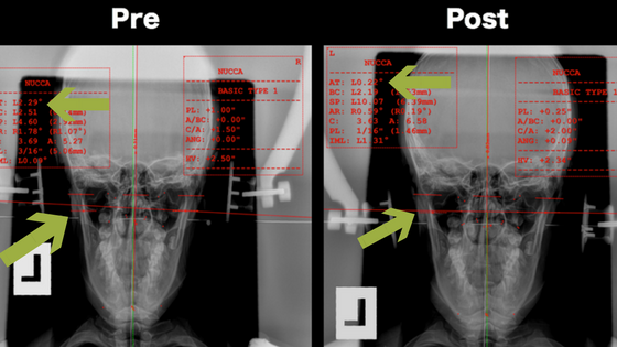 Pre and Post X-ray shows a small shift, but an almost perfect correction.