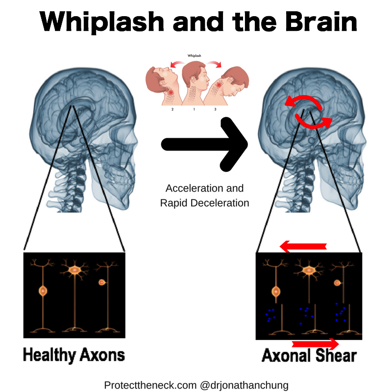 Even a force like a whiplash may move the brain enough to cause injury to the brain's axons